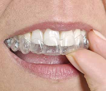 Dr. Imam Mohammed Skowhegan dentist relieves concerns about cost of Invisalign treatment