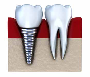 benefits of zirconia dental implants