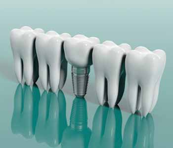 Professional dental implants from Maine Center for Dental Medicine in Skowhegan, ME permanently restore smiles.