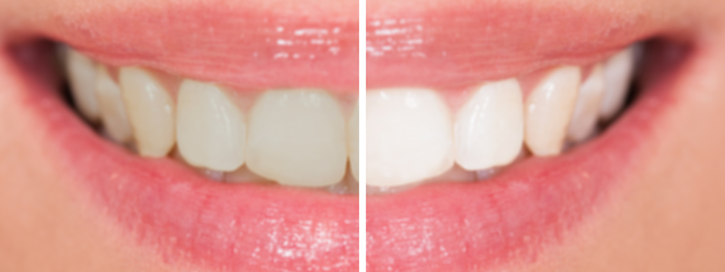 - Cosmetic Dentistry