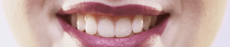 World's First BPA Composite Free Filling Material - Cosmetic Dentistry