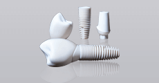 Dentist Skowhegan - Zirconia-metal